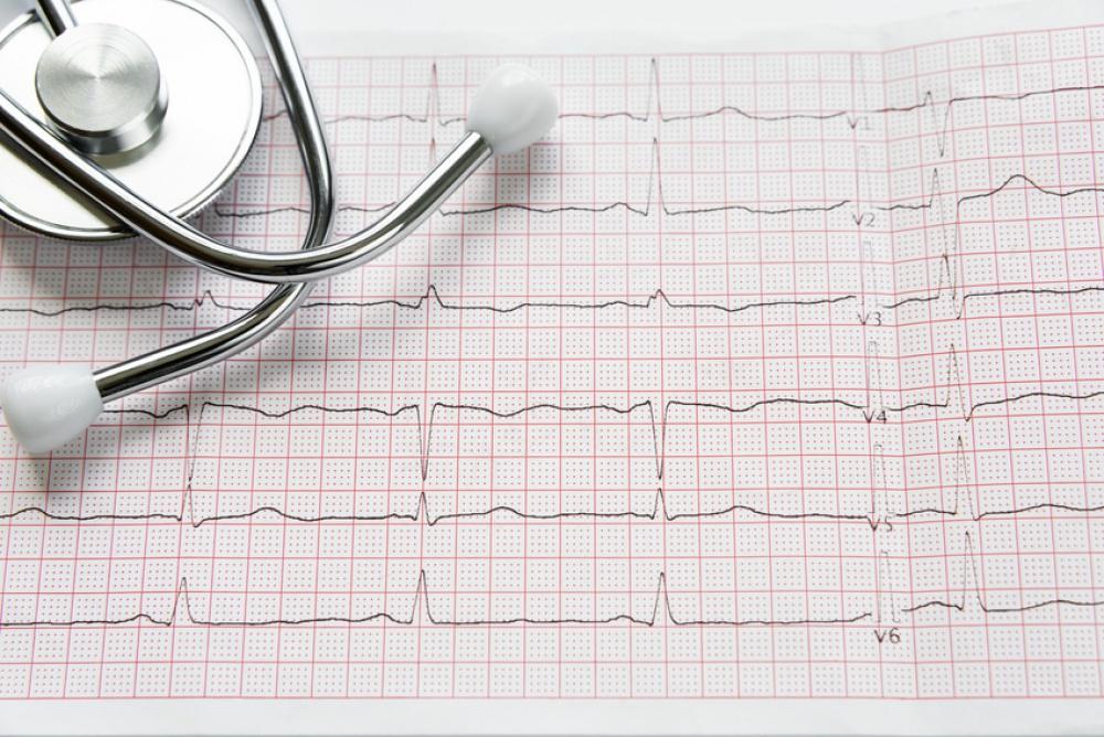 Holter cardiaco in farmacia? Lo trovi da noi!